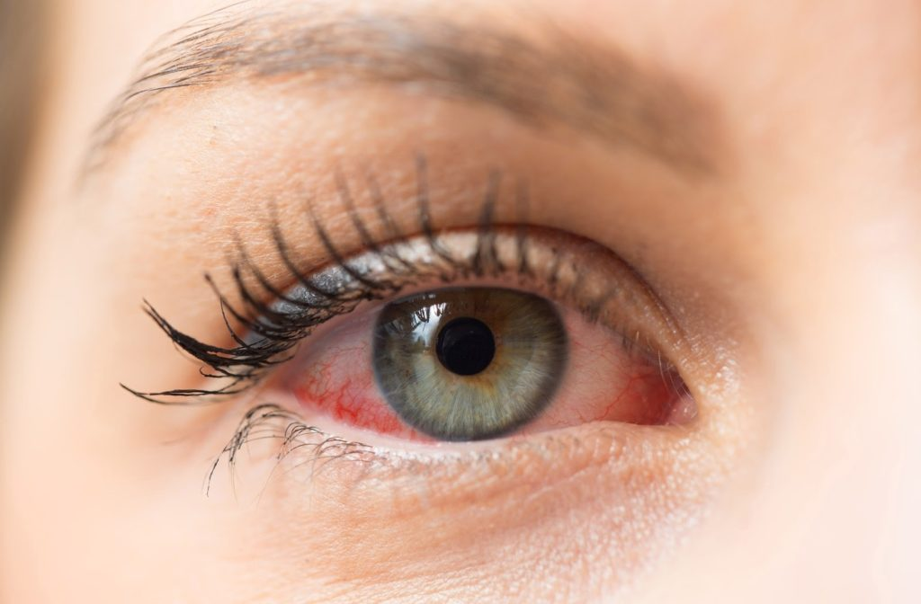 A woman with a watery and red eye caused by dry eye